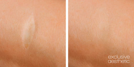 Scar Removal Micropigmentation Experts Dubai Middle East Exclusive Aesthetic