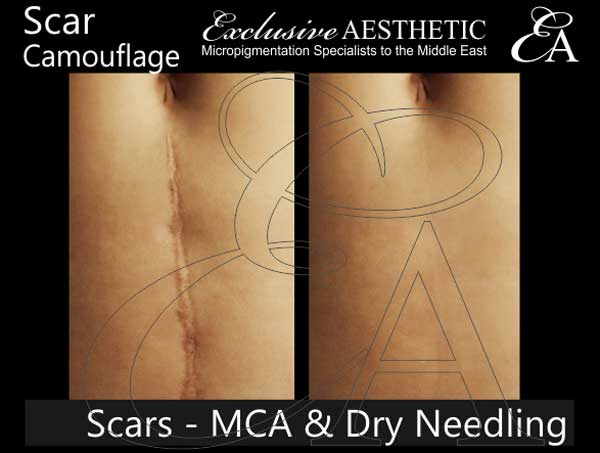 Scar-Removal-using-MCA-Dry-Needling-1