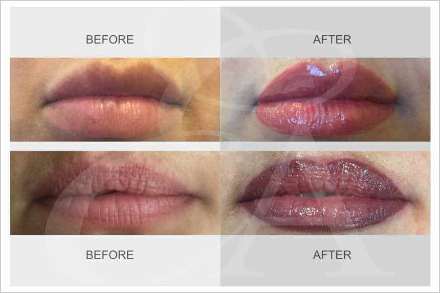 Semi Permanent Makeup for Lips - Lip Liner and Full Lip Colour - Before and After. Exclusive Aesthetic, Micropigmentation Experts, Dubai Middle East.