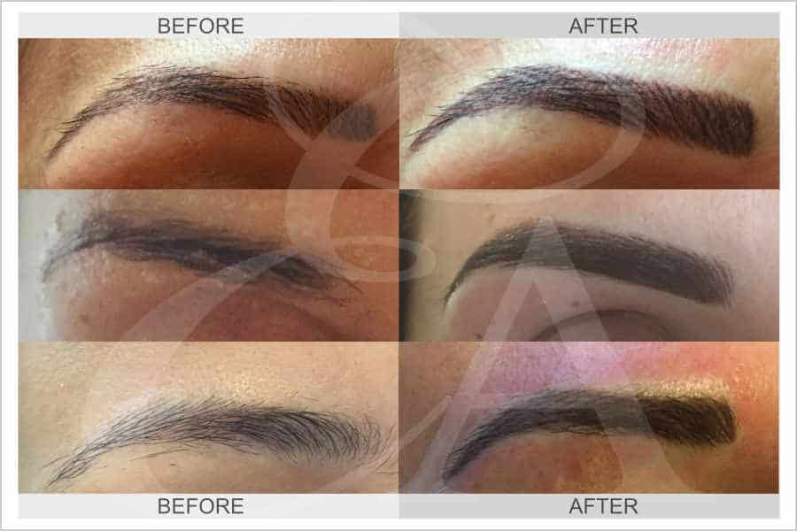 Semi Permanent Makeup for Eyebrows - Before and After. Exclusive Aesthetic, Micropigmentation Experts, Dubai Middle East.