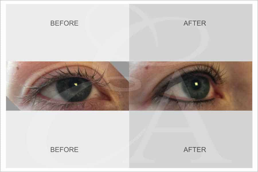 Semi Permanent Makeup for Eyeliner - Before and After. Exclusive Aesthetic, Micropigmentation Experts, Dubai Middle East.